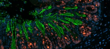 The bacterial pathogen C. rodentium (green) is penetrating deeply into the intestinal crypts of mice.