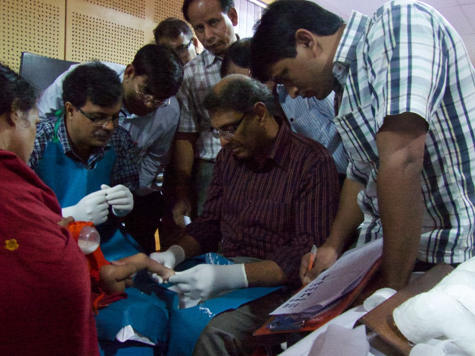 Shafique Pirani, centre, demonstrates the Ponseti technique to Bangladeshi orthopaedic physicians. Photo: Lynn Staheli
