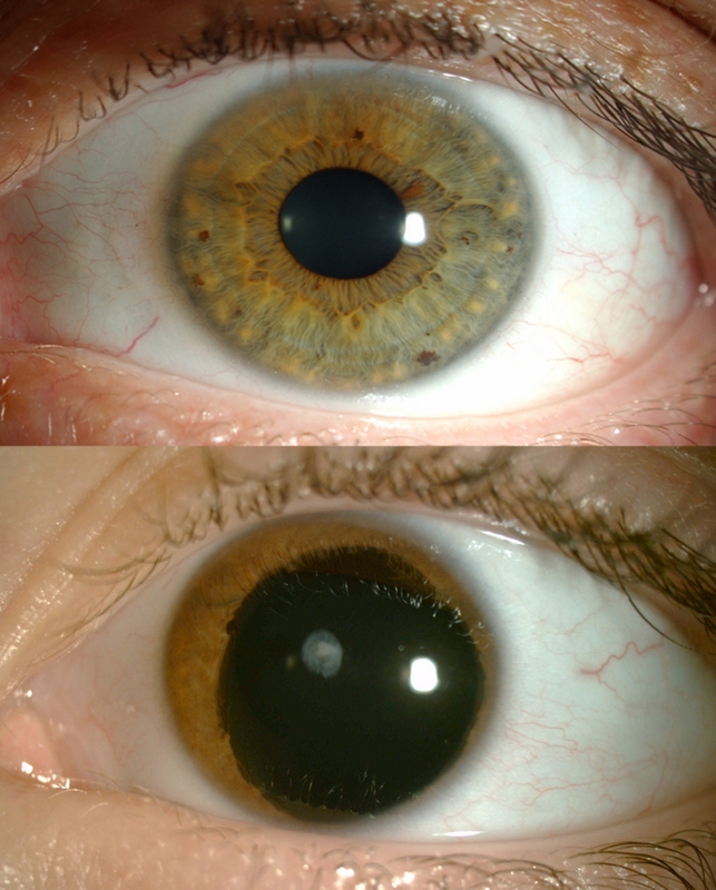 Top: a normal eye. Bottom: an aniridic eye.