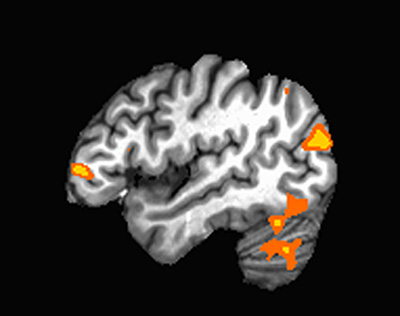 "An fMRI image of a child's brain while performing the ""clocks task."""