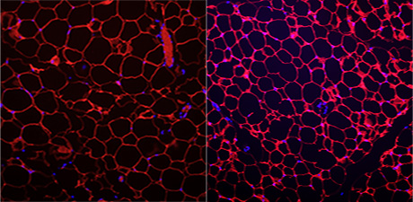 L-R: Fat cells from normal mice, and smaller fat cells from mice lacking the protein 14-3-3zeta.