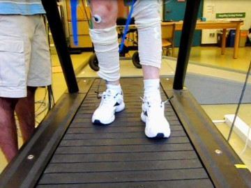 A research patient walks on the treadmill as part of the study.