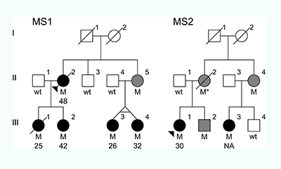 "The family trees of the two families that carried the MS-causing mutation. ""M""=individuals with the mutation. Black dots=individuals with progressive MS and the age of disease onset. Gray dots or squares=individuals with the mutation whose health is unknown."