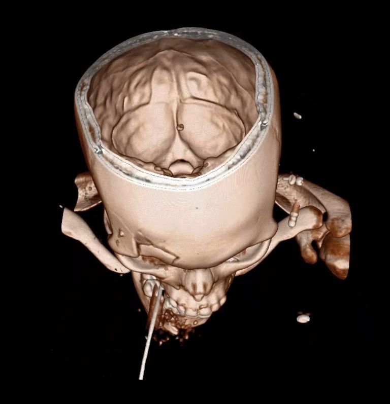 "A 3-D rendering of a skull, ""virtually"" sliced open on the anatomy visualization table."